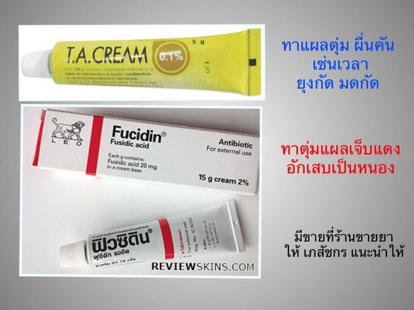 ยาทาแก้คัน, Fucidin, ฟิวซิดิน, T.A. Cream