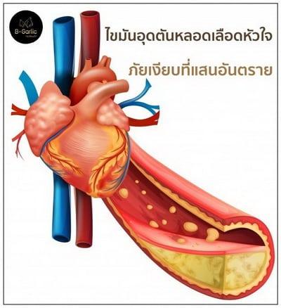 ไขมันอุดตันหลอดเลือดหัวใจ