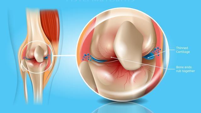 Osteoarthritis, ข้อเข่าเสื่อม